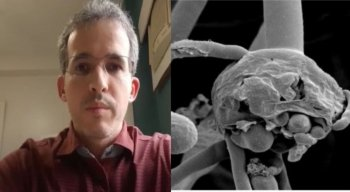 Thiago Ferraz, infectologista do HUOC, tirou algumas dúvidas sobre a doença e falou sobre a situação da paciente pernambucana que foi infectada pela mucormicose.