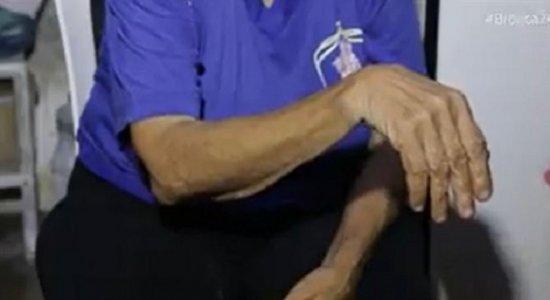 Denúncia: idosa é espancada por vizinhos que roubam sua aposentadoria, em Boa Viagem, e registra boletins de ocorrência desde 2018