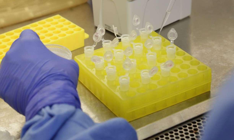 Pernambuco se aproxima de 50 mil casos de coronavírus