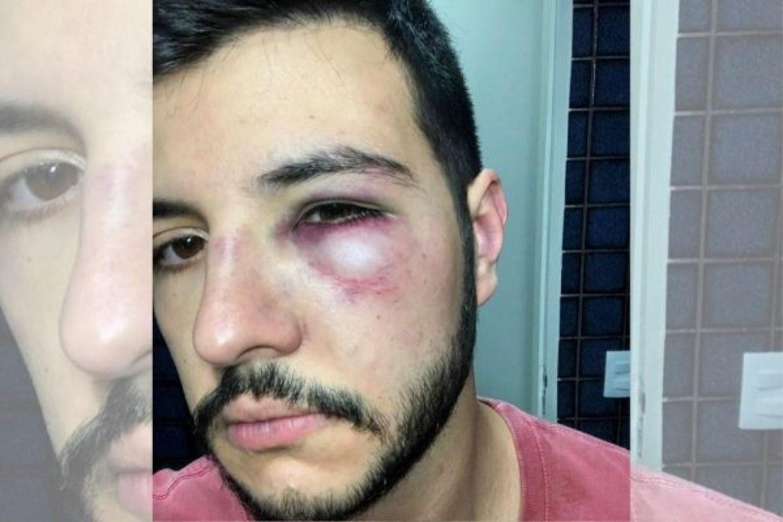 Apresentador da Record reage a assalto e é agredido em Brasília