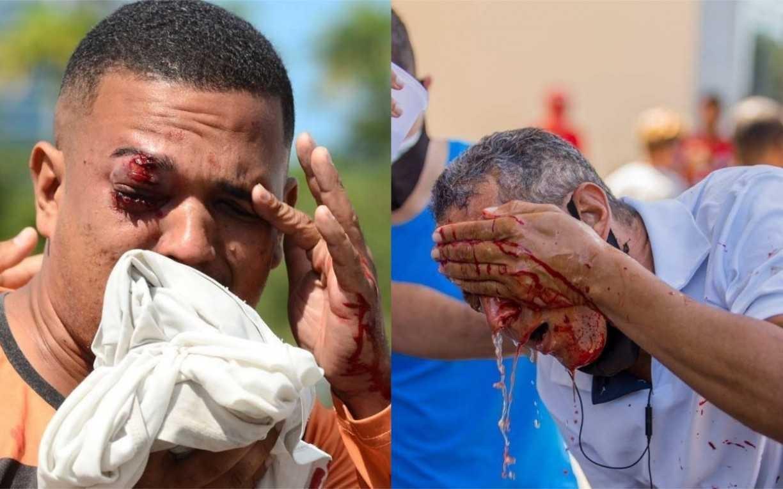 Dois ou quatro salários, vitalícia ou não; entenda as indenizações pedidas aos homens que perderam a visão após ação policial no Recife