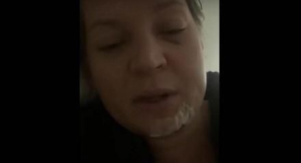 Em nota, a assessoria da deputada afirmou que após exames, foram constatados diversos traumas pelo corpo — joelho, costela, ombro e nuca —, incluindo cinco fraturas na face e uma na coluna.